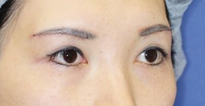 新宿ラクル美容外科クリニック 山本厚志 眉下切開 手術直後