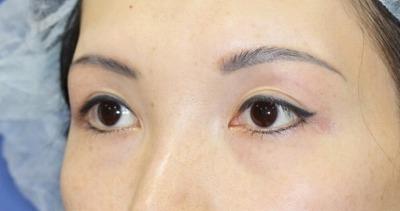 新宿ラクル美容外科クリニック 山本厚志 眉下切開 手術後3ヶ月目