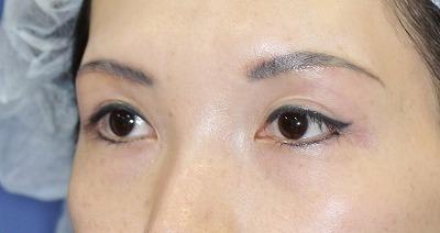 新宿ラクル美容外科クリニック 山本厚志 眉下切開 手術後2週間目