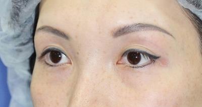 新宿ラクル美容外科クリニック 山本厚志 眉下切開 手術後12ヶ月目
