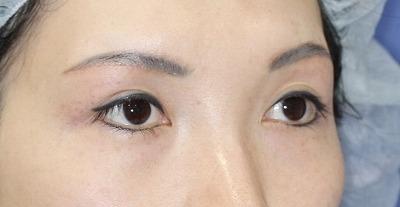 新宿ラクル美容外科クリニック 山本厚志 眉下切開 手術後1ヶ月目