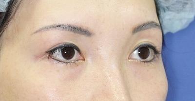 新宿ラクル美容外科クリニック 山本厚志 眉下切開 手術後6ヶ月目