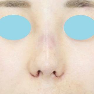 「鼻プロテーゼ+鼻尖縮小(close法)+耳介軟骨移植+小鼻縮小」 新宿ラクル美容外科クリニック 20代女性 手術直後