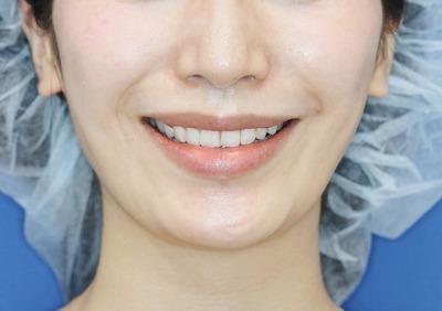 新宿ラクル美容外科クリニック ボトックス(ゼオミン)(ガミースマイル) 20代女性 治療後2週間目