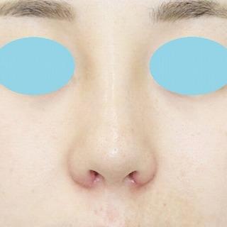 「鼻プロテーゼ+鼻尖縮小(close法)+耳介軟骨移植+小鼻縮小」 新宿ラクル美容外科クリニック 20代女性 手術後1週間目