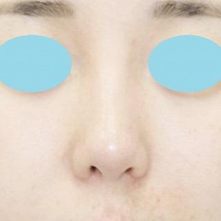 「鼻プロテーゼ+鼻尖縮小(close法)+耳介軟骨移植+小鼻縮小」 新宿ラクル美容外科クリニック 20代女性 手術後3ヶ月目