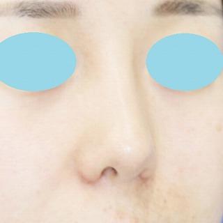 「鼻プロテーゼ+鼻尖縮小(close法)+耳介軟骨移植+小鼻縮小」 新宿ラクル美容外科クリニック 20代女性 手術後1ヶ月目