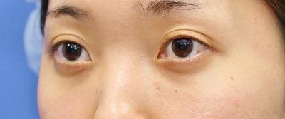 新宿ラクル美容外科クリニック 山本厚志 切らない目の下のたるみ取り 20代女性 手術後12ヶ月目