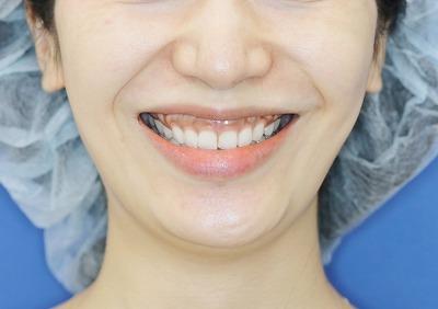 新宿ラクル美容外科クリニック ボトックス(ゼオミン)(ガミースマイル) 20代女性 治療前