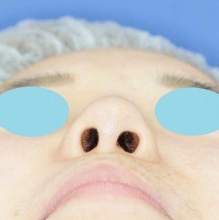 「鼻プロテーゼ+鼻尖縮小(close法)+耳介軟骨移植+小鼻縮小」 新宿ラクル美容外科クリニック 20代女性 手術前