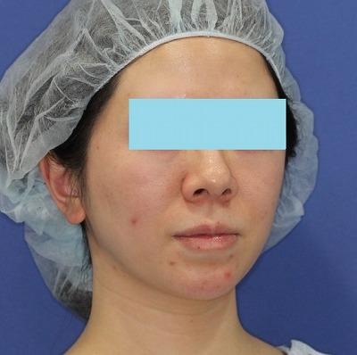 新宿ラクル美容外科クリニック 山本厚志 「ミントリフトⅡminiS flex(シークレットリフト)」手術前