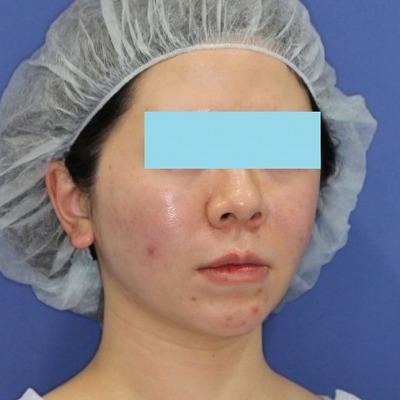 新宿ラクル美容外科クリニック 山本厚志 「ミントリフトⅡminiS flex(シークレットリフト)」手術直後