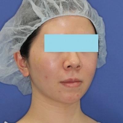 新宿ラクル美容外科クリニック 山本厚志 「ミントリフトⅡminiS flex(シークレットリフト)」手術後1週間目