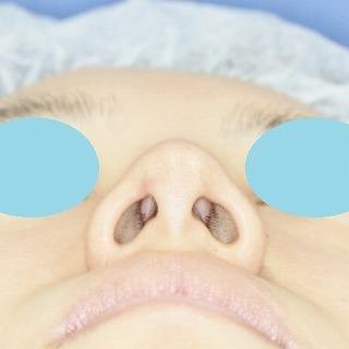 新宿ラクル美容外科クリニック 山本厚志 n-COG Y-ko(ワイコ) 手術後3ヶ月目