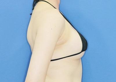 新宿ラクル美容外科クリニック 「Motiva(モティバ)エルゴノミクスによる豊胸術」 40代女性 手術後12ヶ月目