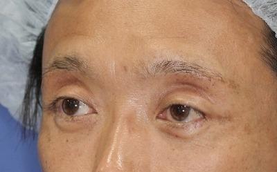 新宿ラクル美容外科クリニック 山本厚志 眉下切開法 手術後3ヶ月目