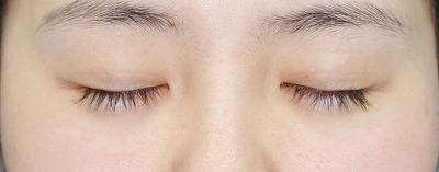新宿ラクル美容外科クリニック 山本厚志 目尻切開+埋没法二重術(エクセレントアイ) 手術前