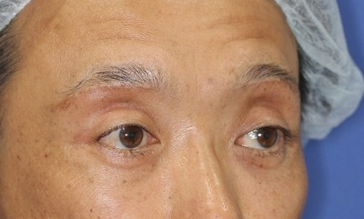 新宿ラクル美容外科クリニック 山本厚志 眉下切開法 手術後2ヶ月目