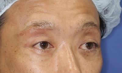 新宿ラクル美容外科クリニック 山本厚志 眉下切開法 手術後1ヶ月目