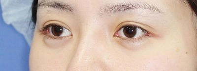 新宿ラクル美容外科クリニック 山本厚志 目尻切開+埋没法二重術(エクセレントアイ) 手術後1ヶ月目