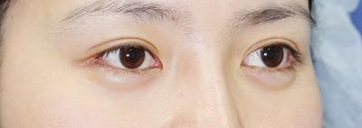 新宿ラクル美容外科クリニック 山本厚志 目尻切開+埋没法二重術(エクセレントアイ) 手術後2ヶ月目