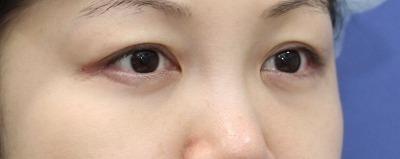 新宿ラクル美容外科クリニック 山本厚志 「切らない目の下のたるみ取り」 リデンシティⅡ 手術後3ヶ月目