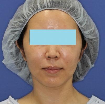 新宿ラクル美容外科クリニック 山本厚志 「ミントリフトⅡminiS flex(シークレットリフト)」 手術後1ケ月目