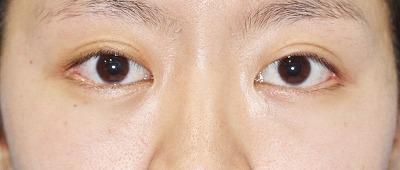 新宿ラクル美容外科クリニック 山本厚志 「目尻切開」 手術後3ヶ月目