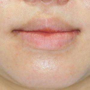 新宿ラクル美容外科クリニック 山本厚志 「口唇縮小術」 手術前