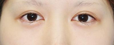 新宿ラクル美容外科クリニック 山本厚志 「目尻切開」 手術前 4月13日