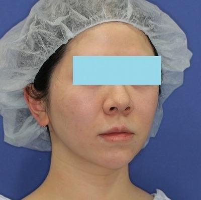 新宿ラクル美容外科クリニック 山本厚志 「ミントリフトⅡminiS flex(シークレットリフト)」手術後3ヶ月目