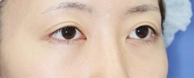 新宿ラクル美容外科クリニック 山本厚志 切らない眼瞼下垂 目尻切開 手術後3ヶ月目