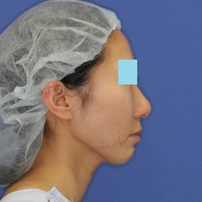 新宿ラクル美容外科クリニック 山本厚志 「ミントリフトⅡminiS flex(シークレットリフト)」 手術後1ヶ月目