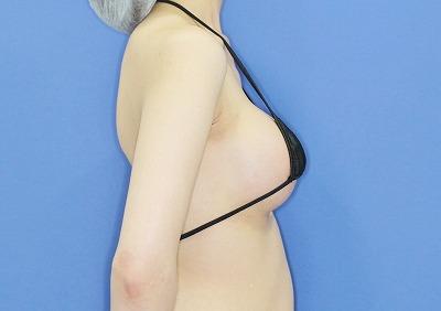 新宿ラクル美容外科クリニック 山本厚志 「Motiva(モティバ)エルゴノミクス」 手術後3ヶ月目