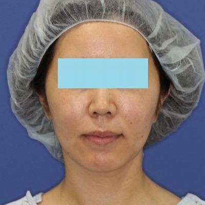 新宿ラクル美容外科クリニック 山本厚志 「ミントリフトⅡminiS flex(シークレットリフト)」 手術後2ケ月目
