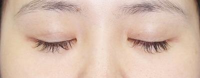 新宿ラクル美容外科クリニック 山本厚志 目尻切開+埋没法二重術(エクセレントアイ) 手術後3ヶ月目