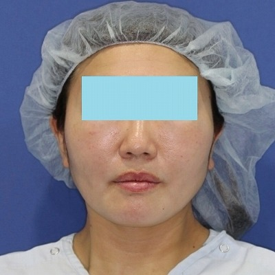新宿ラクル美容外科クリニック 山本厚志 「ウルトラ小顔コラーゲンリフト」 手術後1週間目