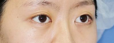 新宿ラクル美容外科クリニック 山本厚志 「目尻切開」 手術後6ヶ月目