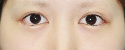 新宿ラクル美容外科クリニック 山本厚志 「目尻切開」 手術後1ケ月目