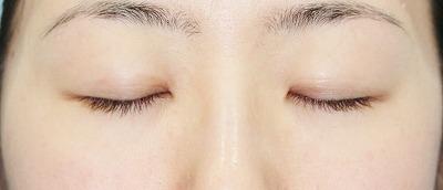 新宿ラクル美容外科クリニック 山本厚志 「埋没法二重術(エクセレントアイ)」 手術前
