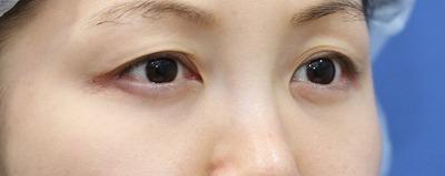 新宿ラクル美容外科クリニック 山本厚志 「切らない目の下のたるみ取り」 リデンシティⅡ 手術後6ヶ月目