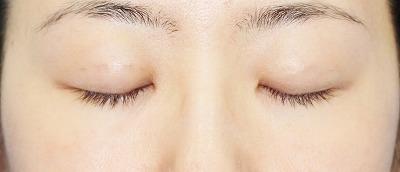 新宿ラクル美容外科クリニック 山本厚志 「埋没法二重術(エクセレントアイ)」 手術後1週間目