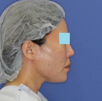新宿ラクル美容外科クリニック 山本厚志 「ウルトラ小顔コラーゲンリフト」 手術直後