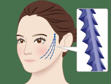 新宿ラクル美容外科クリニック 山本厚志 「ウルトラ小顔コラーゲンリフト」