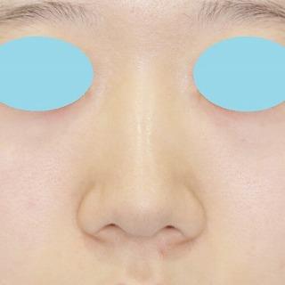 新宿ラクル美容外科クリニック 山本厚志 「鼻プロテーゼ隆鼻術+小鼻縮小」 手術前