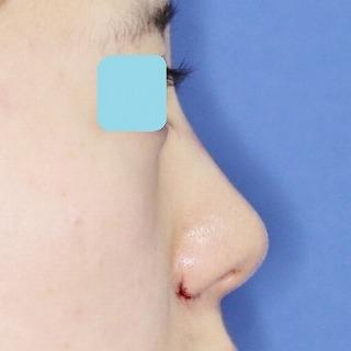 新宿ラクル美容外科クリニック 山本厚志 「鼻プロテーゼ隆鼻術+小鼻縮小」 手術直後