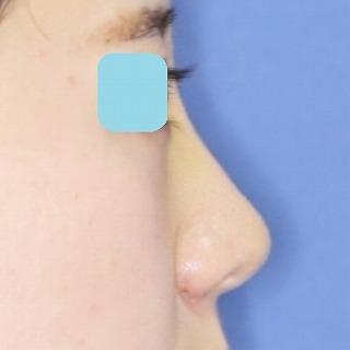 新宿ラクル美容外科クリニック 山本厚志 「鼻プロテーゼ隆鼻術+小鼻縮小」 手術後1週間目