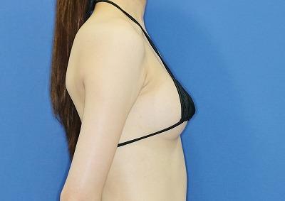 新宿ラクル美容外科クリニック 山本厚志 「アクアフィリング(AQUA filling)注入豊胸」 手術後1ヶ月目