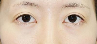 新宿ラクル美容外科クリニック 山本厚志 切らない眼瞼下垂 目尻切開 手術後6ヶ月目