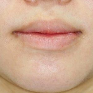 新宿ラクル美容外科クリニック 山本厚志 「口唇縮小術」 手術後3ヶ月目